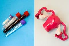 Laboratoriumdiagnos av den metaboliska funktionen, sjukdomar, biochemical kränkningar, skada av livmodern och äggstockar Livmoder Royaltyfri Foto