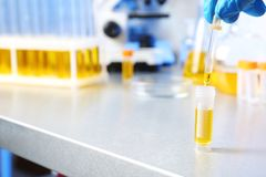 Laboratory assistant dripping urine sample from pipette into container on table, closeup with space for text stock photos