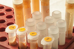 Laboratory test tubes. Close up laboratory test tubes Stock Images