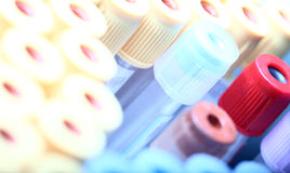 Laboratory test tubes. Different colored laboratory test tubes. photo Royalty Free Stock Photo