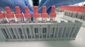 Scientist fills a rack with blood samples, close up. Laboratory worker places bunch of tubes with blood onto a special rack at a clinic stock video