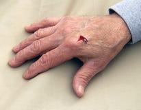 Laceración a la mano derecha Imagen de archivo