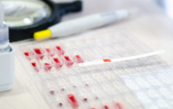 Lackmusremsor för blodanalys på paletter med blodet som bestämmer Rh-faktor arkivfoton