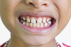 Lacunes de dents avant photographie stock