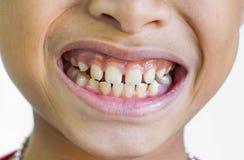 Lacunes de dents avant photo stock