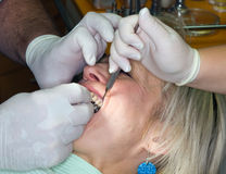 Lady in dental office Stock Photos