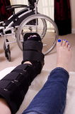 Lady with Fractured Leg. A lady with a fractured leg sat in an armchair with her injured leg in an orthopeadic boot, with a wheelchair in the background royalty free stock photos