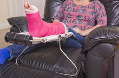 Lady with Fractured Leg. A lady with a fractured leg sat in an armchair with her pink pot on a raised leg support Stock Photo