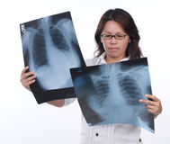 Lady looking at x-ray Royalty Free Stock Photo
