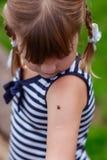 Ladybug на плече для девушки Стоковые Изображения RF