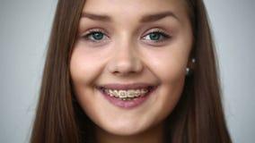 LANGZAME MOTIE: Het jonge meisje met steunen op tanden werpt terug haar headSLOWmotie: Jong meisje die met steunen op tanden came stock videobeelden