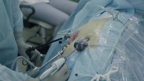 Laparoscopic хирургия брюшка акции видеоматериалы