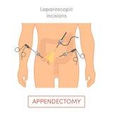 Laparoscopic blindtarmsoperation - bilagaborttagning Arkivbild