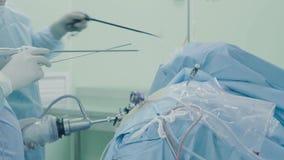 Laparoscopic surgery of the abdomen stock video