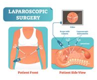 Laparoscopic surgery medical health care surgical procedure process, anatomical cross section vector illustration diagram. Laparoscopy instruments with camera stock illustration