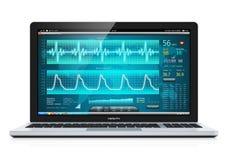 Laptop met medische cardiologische kenmerkende software Stock Foto