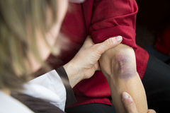 Large bruise on human arm Royalty Free Stock Photo