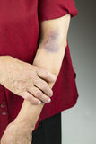 Large bruise on human arm Royalty Free Stock Photos