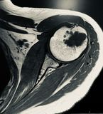 Large chondroid lesion mri examination. There is one of the sequence of MRI examination , due to pain in the shoulder of the patient . Dangerous pathology of the royalty free stock images