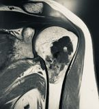 Large chondroid lesion mri examination. There is one of the sequence of MRI examination , due to pain in the shoulder of the patient . Dangerous pathology of the royalty free stock image