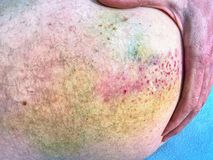 Large colorful bruise on body. Painful hurt place after sporty incident. Stock Images