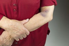 Large hematoma on human arm Royalty Free Stock Image