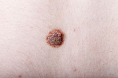 Large mole, close-up, medicine, health Royalty Free Stock Photo