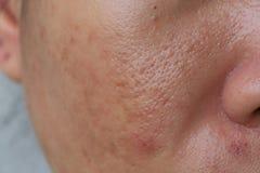Free Large Pore And Blemish Asian Skin Stock Photos - 184941163
