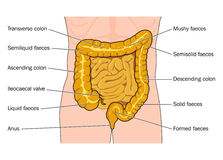 Large and small intestines. Showing the nature of the faeces found at various points in the colon Stock Image