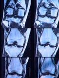 Larme cruciforme antérieure de ligament vue sur le genou IRM. Photos stock