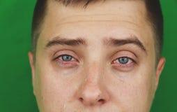 Larmes dans les yeux de l'homme adulte pleurant Fond vert chromakey photo stock
