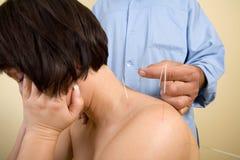 Las agujas de la acupuntura encendido mueven hacia atrás de una mujer joven fotos de archivo libres de regalías