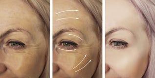 Las arrugas de la mujer hacen frente al cosmetólogo antes y después del tratamiento paciente de la corrección de la diferencia foto de archivo libre de regalías