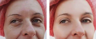 Las arrugas de la mujer hacen frente al paciente del retiro antes y después de cosmetología de los tratamientos imagenes de archivo