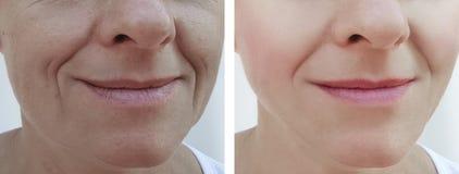 Las arrugas de la mujer hacen frente al paciente de la diferencia del retiro antes y después de cosmetología de los tratamientos fotos de archivo libres de regalías