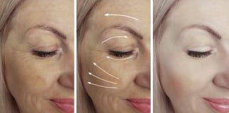 Las arrugas de la mujer hacen frente al rejuvenecimiento antes y después del collage del tratamiento de la corrección imagen de archivo libre de regalías