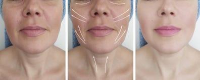 Las arrugas de la mujer hacen frente antes y después de los bolsos de la tensión de la regeneración del biorev, hinchando procedi foto de archivo