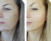 Las arrugas de la mujer hacen frente a diferencia antes y después de concepto de envejecimiento fotos de archivo libres de regalías