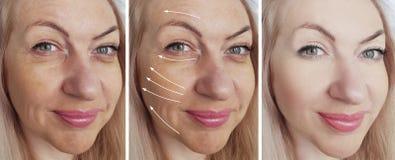 Las arrugas de la mujer hacen frente a diferencia del rejuvenecimiento antes y después del collage del tratamiento de la correcci fotografía de archivo libre de regalías