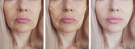 Las arrugas de la mujer hacen frente a la elevación de la flecha del cosmetólogo antes y después del tratamiento paciente de l imagen de archivo libre de regalías