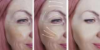 Las arrugas de la mujer hacen frente a la flecha del cosmetólogo antes y después del tratamiento paciente de la corrección de  fotos de archivo libres de regalías