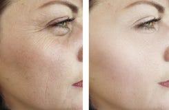 Las arrugas de la mujer hacen frente a la regeneración del therapydifference del efecto del cosmetólogo antes y después de tra fotografía de archivo libre de regalías
