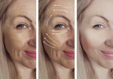 Las arrugas de la mujer hacen frente a la regeneración de la elevación de la flecha del cosmetólogo antes y después del trata fotografía de archivo libre de regalías