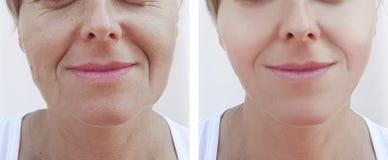 Las arrugas de la mujer hacen frente a retiro antes y después de la cosmetología de los tratamientos imagen de archivo libre de regalías