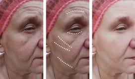 Las arrugas de la mujer mayor hacen frente a la regeneración de los resultados de la corrección antes y después de procedimientos foto de archivo libre de regalías