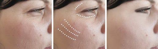 Las arrugas femeninas maduran tratamientos de la terapia de la regeneración de la corrección de la cosmetología del efecto del bi fotos de archivo libres de regalías