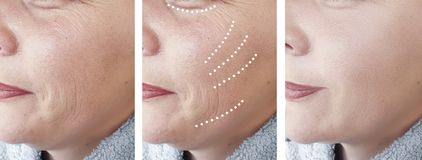 Las arrugas femeninas maduran tratamientos de la terapia de la regeneración de la corrección de la cosmetología del efecto de la  imagen de archivo libre de regalías