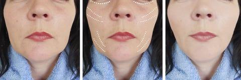 Las arrugas femeninas se maduran antes y después de tratamientos de la terapia de la regeneración de la corrección de la cosmetol imágenes de archivo libres de regalías