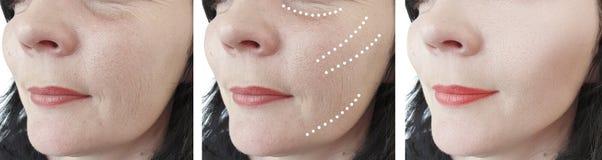 Las arrugas femeninas se maduran antes y después de tratamientos de la terapia de la regeneración de la corrección del collage fotografía de archivo