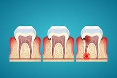 Las caries del progreso de las etapas en los dientes humanos y enfermedad engoman Fotografía de archivo